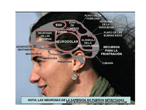 El cerebro de Yoani Sánchez