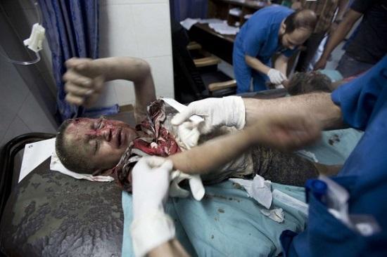 Un niño herido palestino recibe atención médica en el hospital al-Shifa de Gaza. Foto: AFP